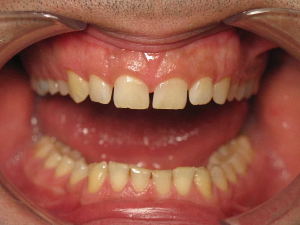 Ortodoncista en Córdoba - Clínica Dental Olmo
