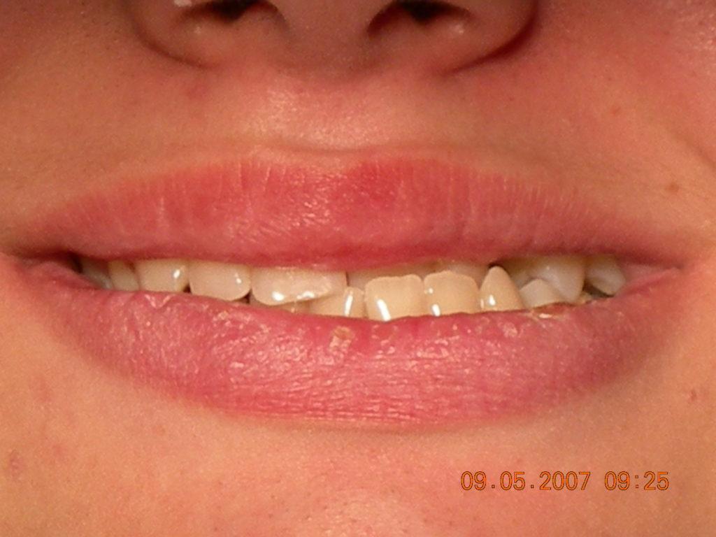 Ortodoncia en Córdoba - Clínica Dental Olmo
