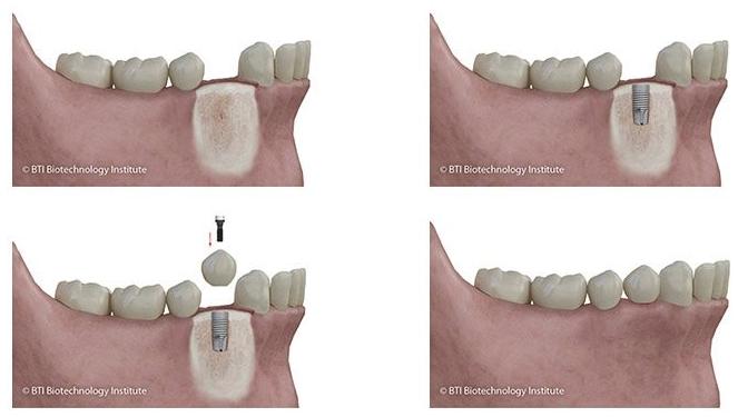 Colocación de implante